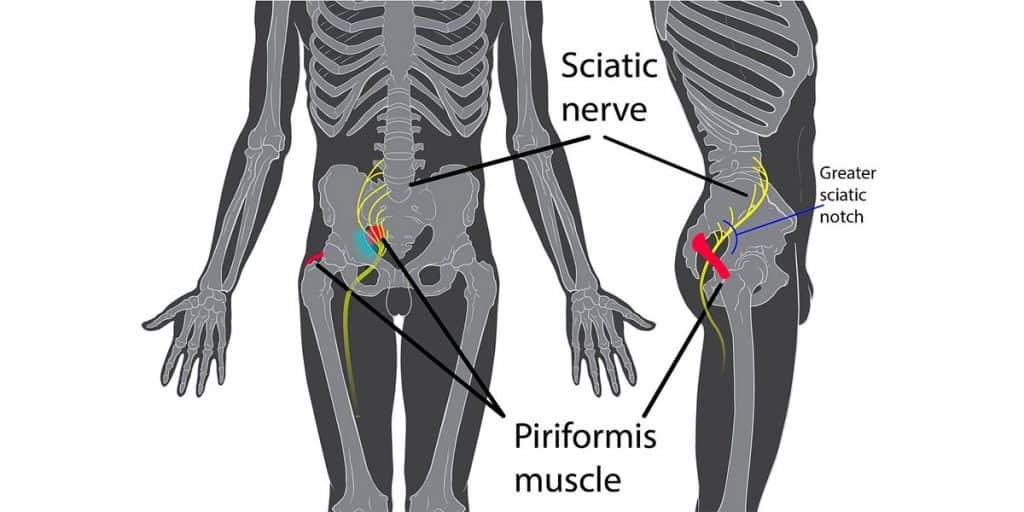 Sciatica vs Piriformis Syndrome