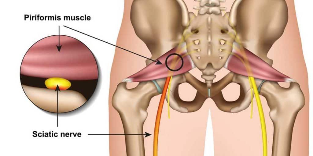 Piriformis Syndrome Vs. Sciatica